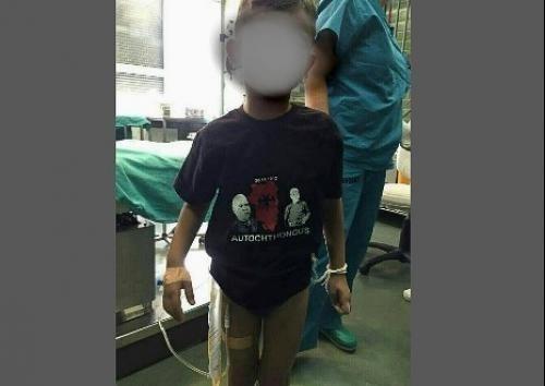 """Клиничи центар Ниш, јуче: Албанци из Прешева довели дете у болницу у мајици са симболом такозване """"велике Албаније""""."""