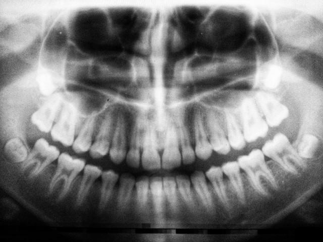 snimanje zuba