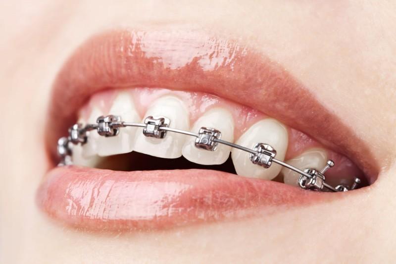 fisna proteza za zube