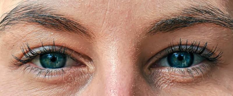 Kada je pravo vreme za operaciju očnog kapaka?